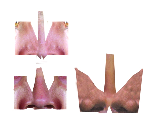 naricesx